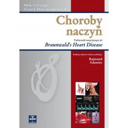 Choroby naczyń. Podręcznik towarzyszący do Braunwald's Heart Disease