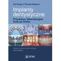 Implanty dentystyczne. Procedury laboratoryjne krok po kroku