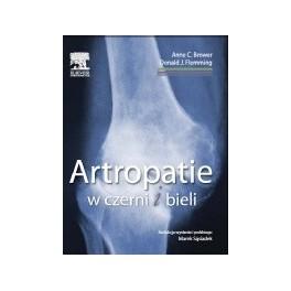 Artropatie w czerni i bieli