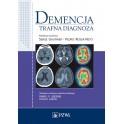 Demencja - trafna diagnoza NOWOŚĆ