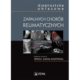 Diagnostyka obrazowa zapalnych chorób reumatycznych NOWOŚĆ