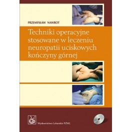 Techniki operacyjne stosowane w leczeniu neuropatii